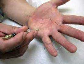 Online course Master Diploma in Hand Acupuncture
